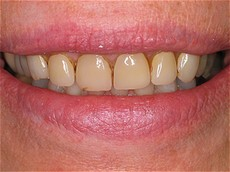 This patient had old, defective veneers that required replacement.